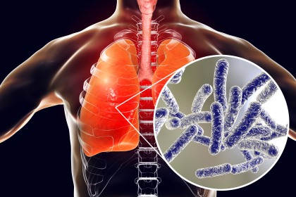 shutterstock 1062330320 Michigan Man Tests Positive for Legionnaires